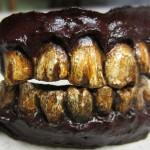 Custom Zombie Teeth